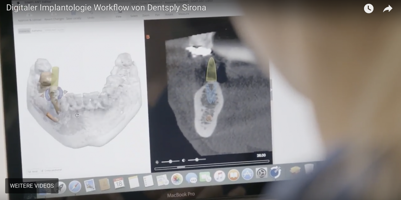 Digitaler Implantologie-Workflow von Dentsply Sirona