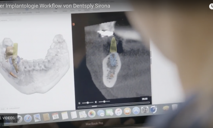 Digitaler Implantologie-Workflow von Dentsply Sirona