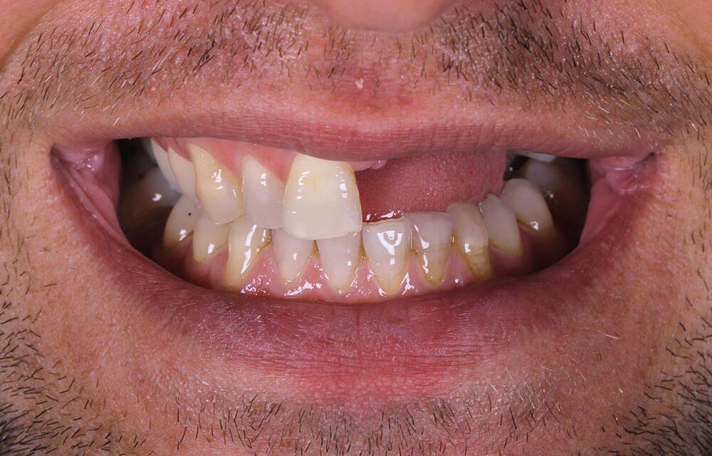 Ersatz mehrerer Zähne nach Sportunfall – Teil 1