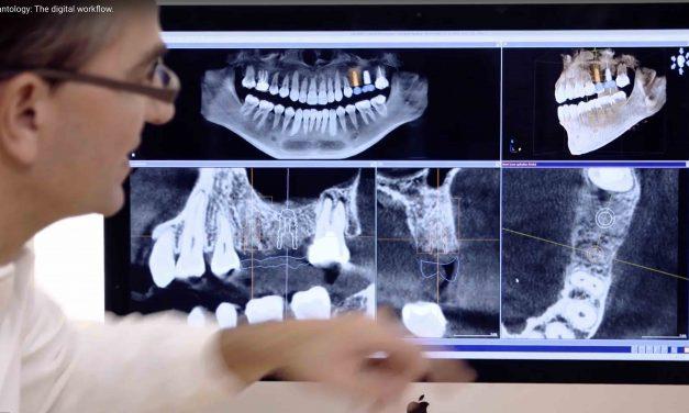 Video: Der digitale Workflow in der Implantologie