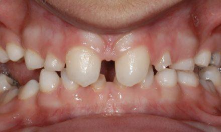 Früherkennung von Seltenen Erkrankungen über orale Erscheinungsformen