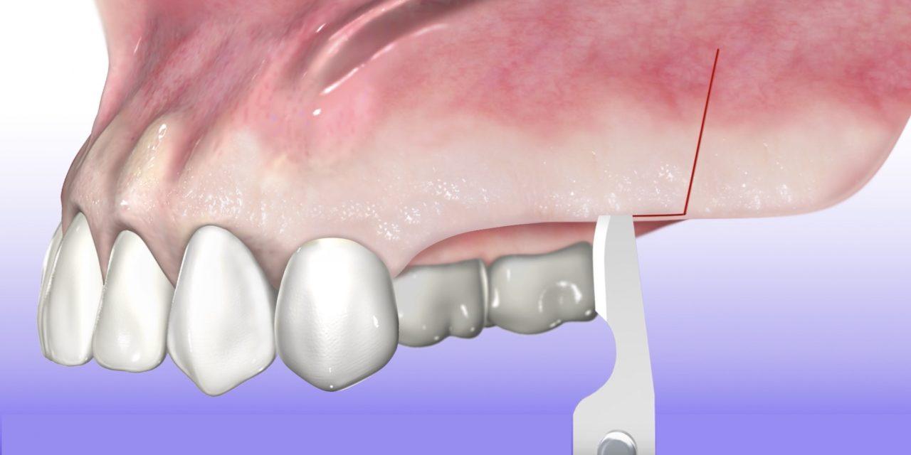 Piezoelektrische Knochenchirurgie anschaulich dargestellt