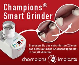 Champions Smart Grinder