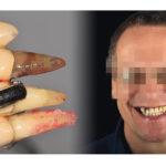 Herausnehmbare Stegversorgung auf Implantaten im kompromittierten Kiefer