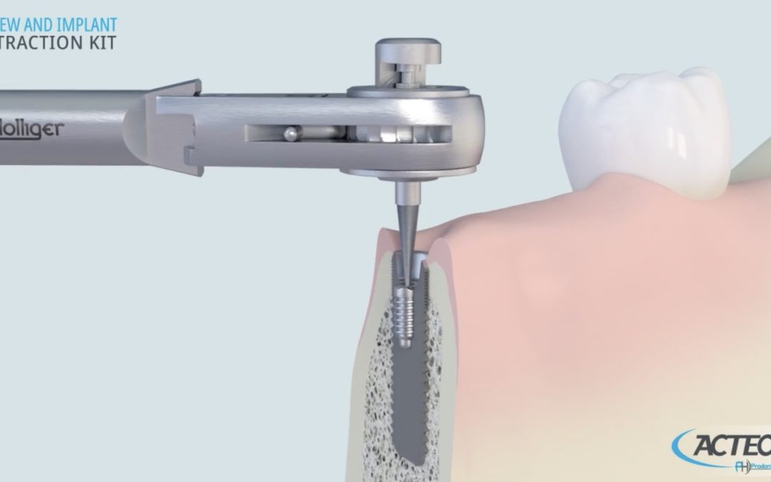 Video: Acteon Implant Remover