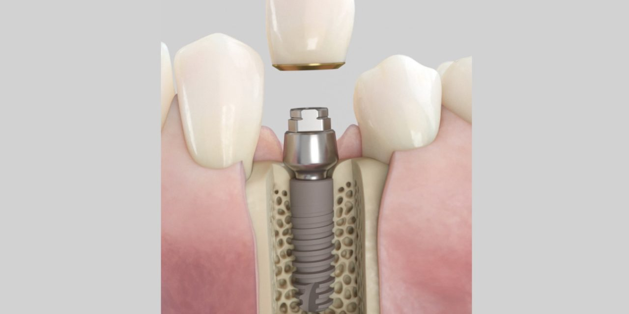 Dentsply Sirona Implants lanciert Acuris