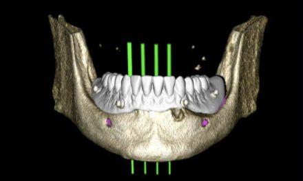 Service zur navigierten Versorgung mit Mini-Implantaten
