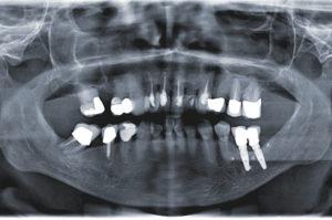 Implantatprothetische Rehabilitation eines makrozystischen Geschehens im Oberkiefer