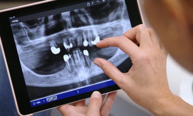 Sofortversorgung im zahnlosen Kiefer bei reduziertem Knochenangebot