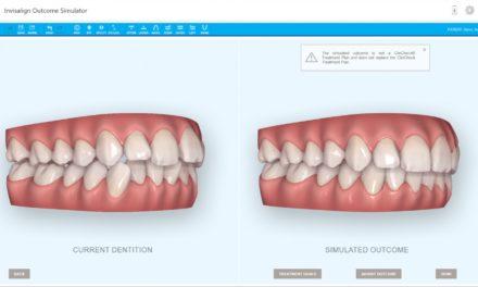 Umfrage zeigt: Visualisierungstools verbessern Patientenakzeptanz