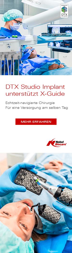 Nobel Biocare X-Guide