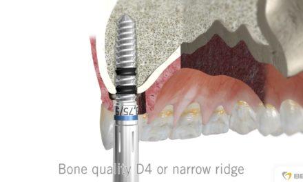 Video: Das Bego Semados RI implant