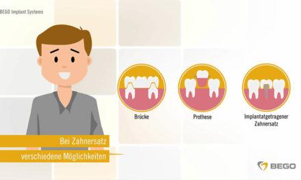 Was ist ein Zahnimplantat?