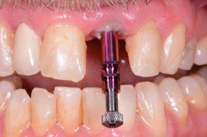 Implantologische Sofortversorgung mit Echtzahnprovisorium