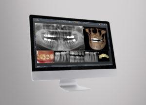 Digitales Röntgen wird smarter und individueller