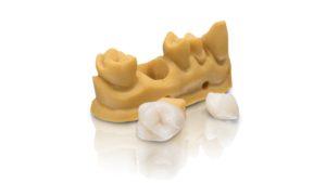 VarseoSmile Crown – für den 3D-Druck von permanenten Einzelkronen, Inlays, Onlays und Veneers