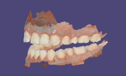 Video: Multiple Bite mit dem Carestream Dental CS 3600