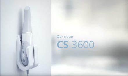 Video: Smarter Intraoralscanner Carestream Dental CS3600