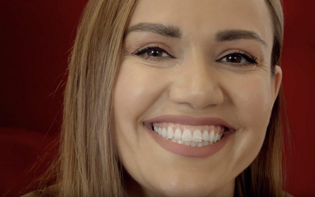 Wie Adisa mit DCM HOTBOND ihr Lächeln wieder erhielt