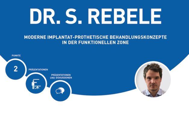 Vortrag: Moderne implantatprothetische Behandlungskonzepte in der funktionellen Zone