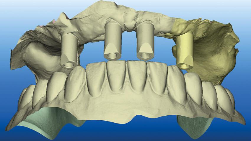 Zweiteilige Keramikimplantate und digitaler Workflow unter klinischen und zahntechnischen Aspekten