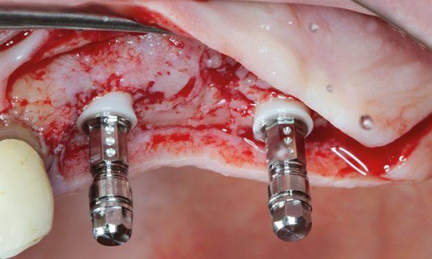 Fallstudie: Versorgung einer einseitigen Freiendsituation im 2. Quadranten mittels zweiteiliger Keramik-Implantate