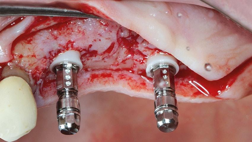Versorgung einer einseitigen Freiendsituation im II. Quadranten mittels zweiteiliger Keramik-Implantate