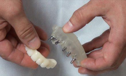 Zahnloser Kiefer: Schraubkanäle vorhersagbar planen