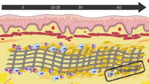 Integration vs. Desintegration – Die Rolle der Membran in der gesteuerten Knochenregeneration