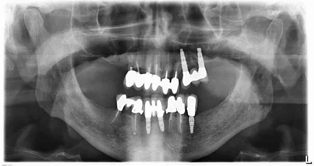 Welches Implantatsystem ist das?