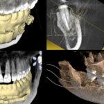 Die navigierte Wurzelspitzenresektion – Apektomie unter Verwendung einer Bohrschablone zur vollnavigierten Implantation