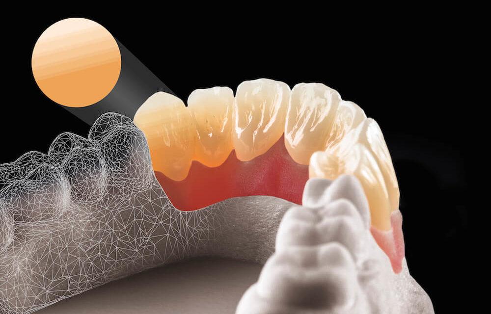 dentaltrade: Natürliche Ergebnisse mit Multilayer-Zirkonoxid