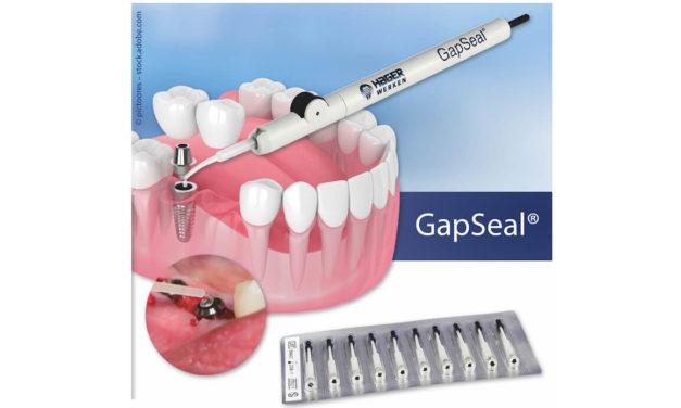 GapSeal: Microleakage bei Implantaten stoppen