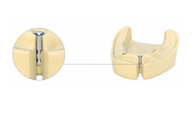 TioLogic TWINFIT: Allrounder in der Modellherstellung