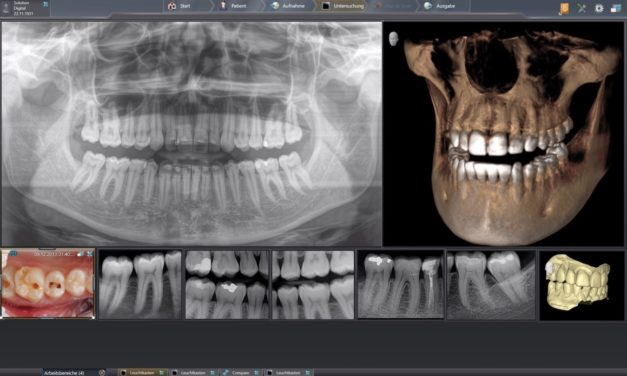 Röntgensoftware Sidexis erfüllt DICOM-Anforderungen