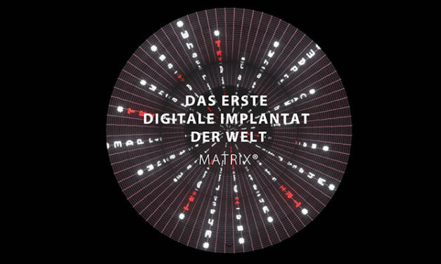 Direkt Versorgbar Ohne Abutment – Matrix® Digitales Implantat