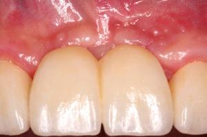 Korrektur eines periimplantären Weichgewebedefizits nach Knochenaugmentation und Implantation