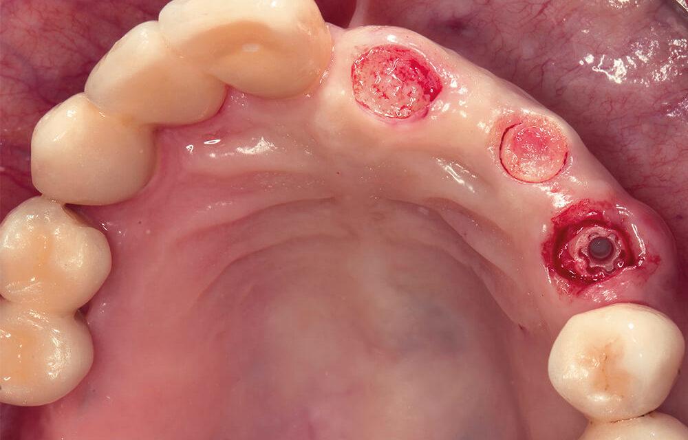 Festsitzende prothetische Versorgung auf zweiteiligen Zirkonoxidimplantaten – Teil 2