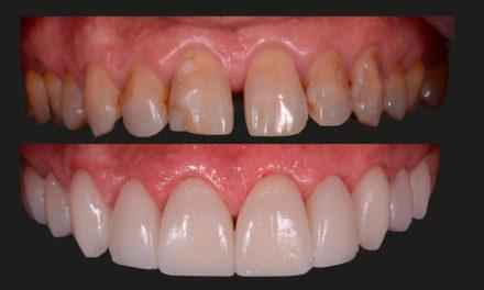 Story behind the Smile: Digitale Dentaltechnologie