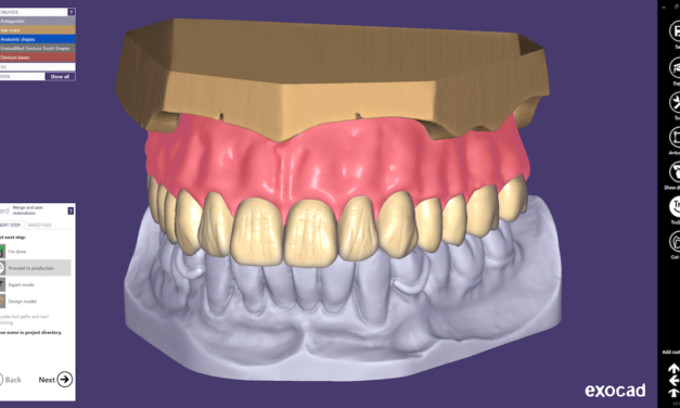 exocad DentalCAD 2.4 Plovdiv ab sofort verfügbar