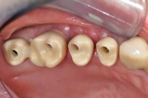 Ultrakurze Implantate im Molarenbereich