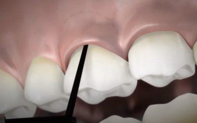 """""""Taschen-Minimierer"""" Lokalantibiotikum Ligosan in der Parodontis-Therapie"""