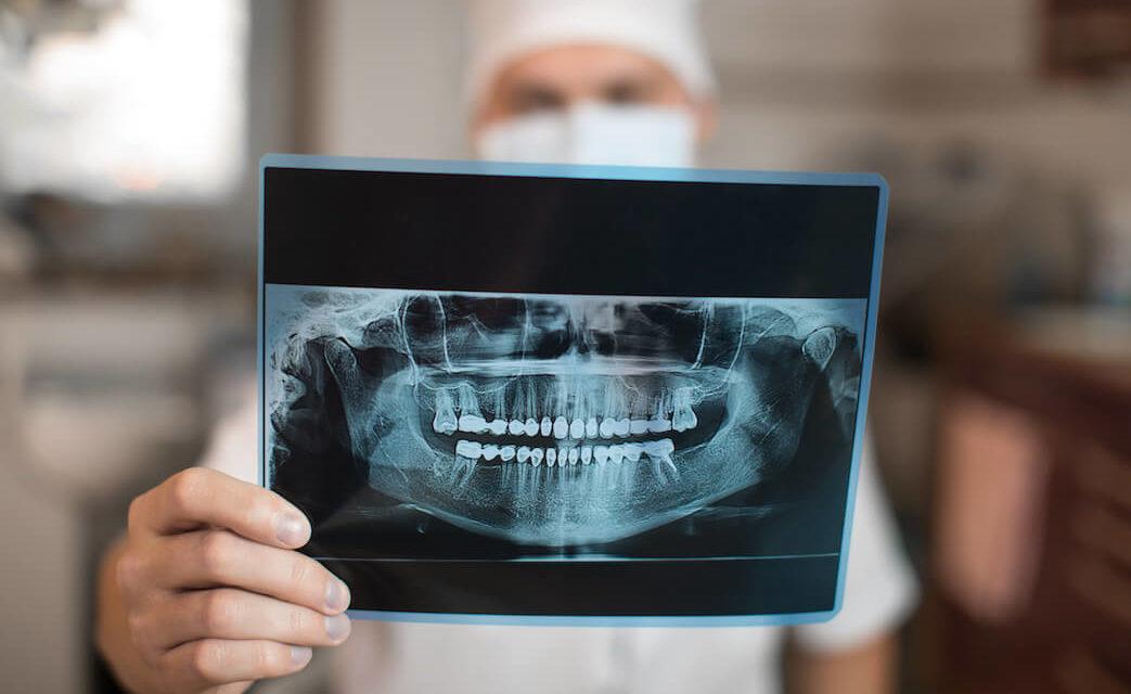 Umrüstung des Röntgengerätes auf DICOM?