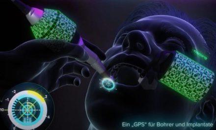 GPS für Freihandeingriffe (X-Guide): Scannen, Planen, Implantieren