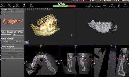 3D-Diagnostik in der zahnärztlichen Chirurgie – Session 1