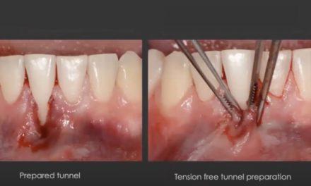 Hyaluronsäure in der Regenerativen und Plastischen Äesthetischen Parodontalchirurgie