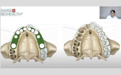 Implantatanzahl und Implantatpositionierung