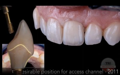 Simone Maffei: Digital Implant Dentistry from a Laboratory Perspective