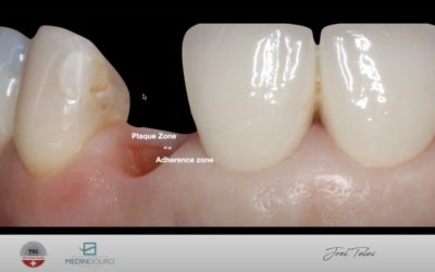 Session 1: Immediate placement and immediate loading – Single crown from molar to high esthetic region