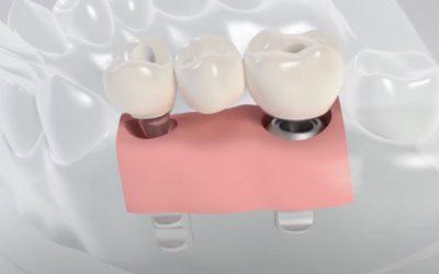 Klebehilfe für das vereinfachte Zementrieren einer Restauration auf Titanklebebasis
